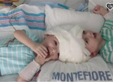 kim_conjoined-twins-surgery-1
